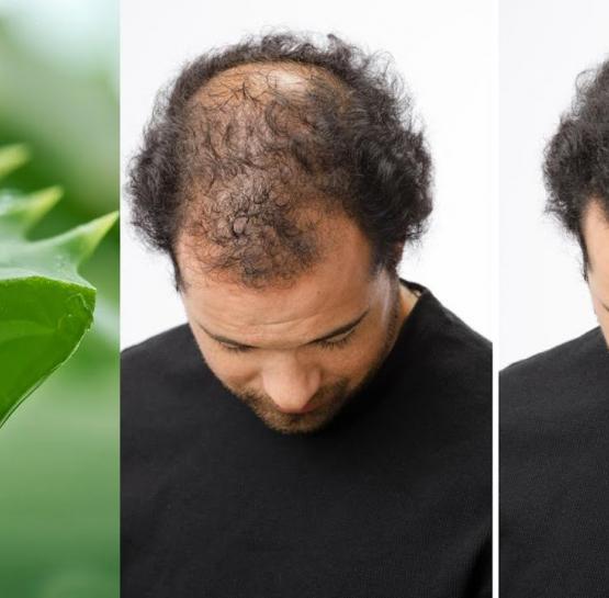 Այս բնական միջոցը բազմաթիվ մարդկանց է օգնել ազատվել մազաթափությունից նար մազեր պարգևել նրանց