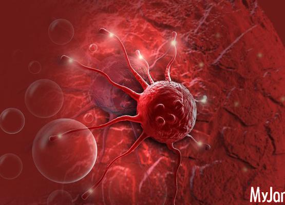 Незаметный убийца: как распознать рак поджелудочной железы
