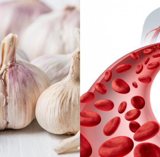 2 բաղադրիչ, որոնք կօգնեն մոռանալ վարիկոզի և արյան շրջանառության հետ բոլոր խնդիրների մասին