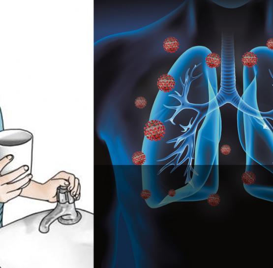 Կորոնավիրուսը մինչ թոքերին հասնելը 3 օր մնում է կոկորդում․ Այն կարող եք վերացնել և թույլ չտալ հասնի թոքեր