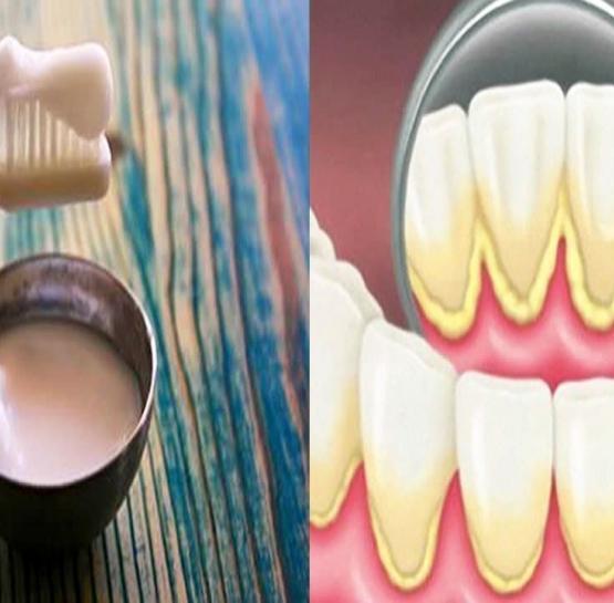 Ատամնաքարերը մաքրելու համար կարող եք օգտագործել այս բնական միջոցը